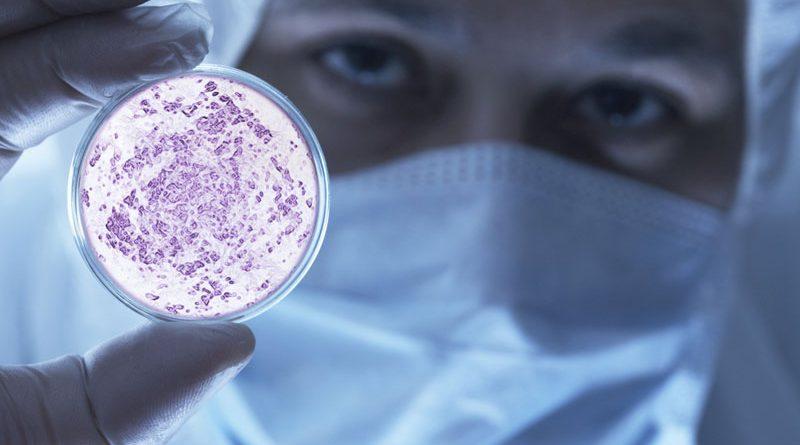 Medicina: super bakterija novi ubica