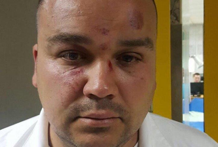 "LSV: Najoštrija osuda napada na aktivistu ""Drugog kruga"""