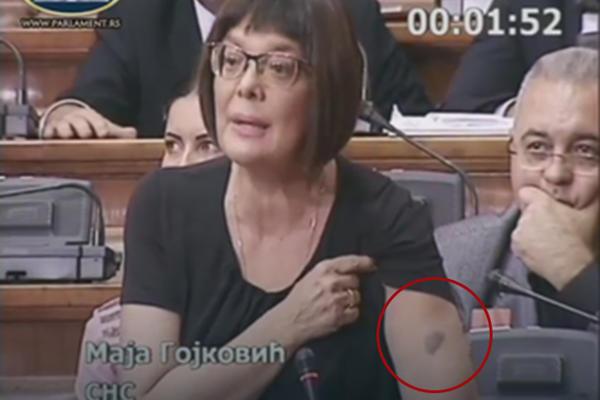 """Skupština Srbije: Maja pokazala """"fašističku"""" modricu!"""