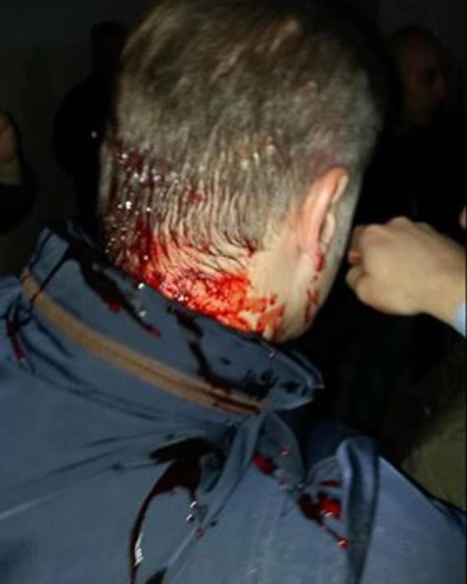 KRUŠEVAC: Batinaši teško povredili Borka Stefanovića