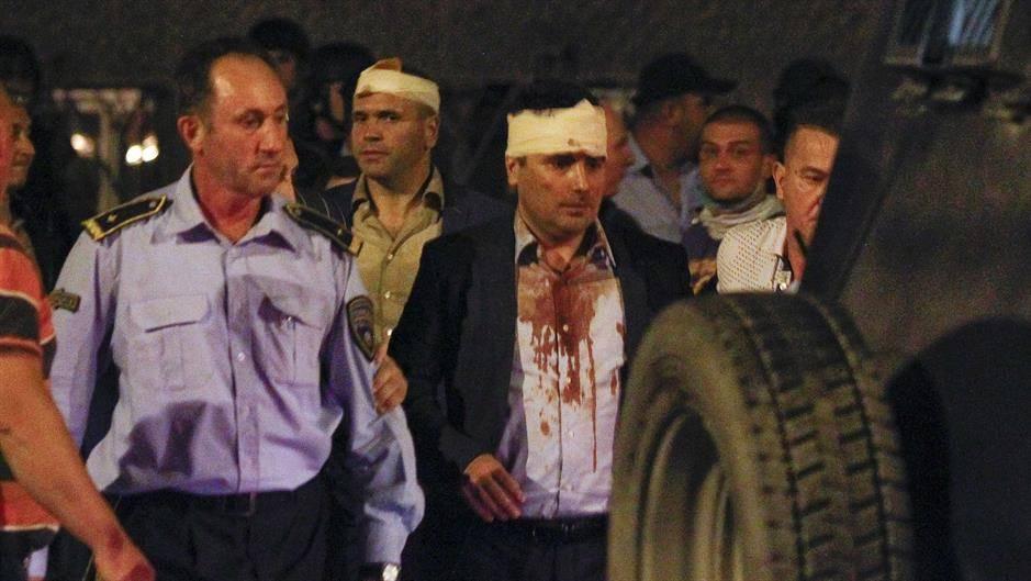 Reagovanje Zorana Zaeva: Kao napadnuti čovek osuđujem svako nasilje protiv institucija sistema